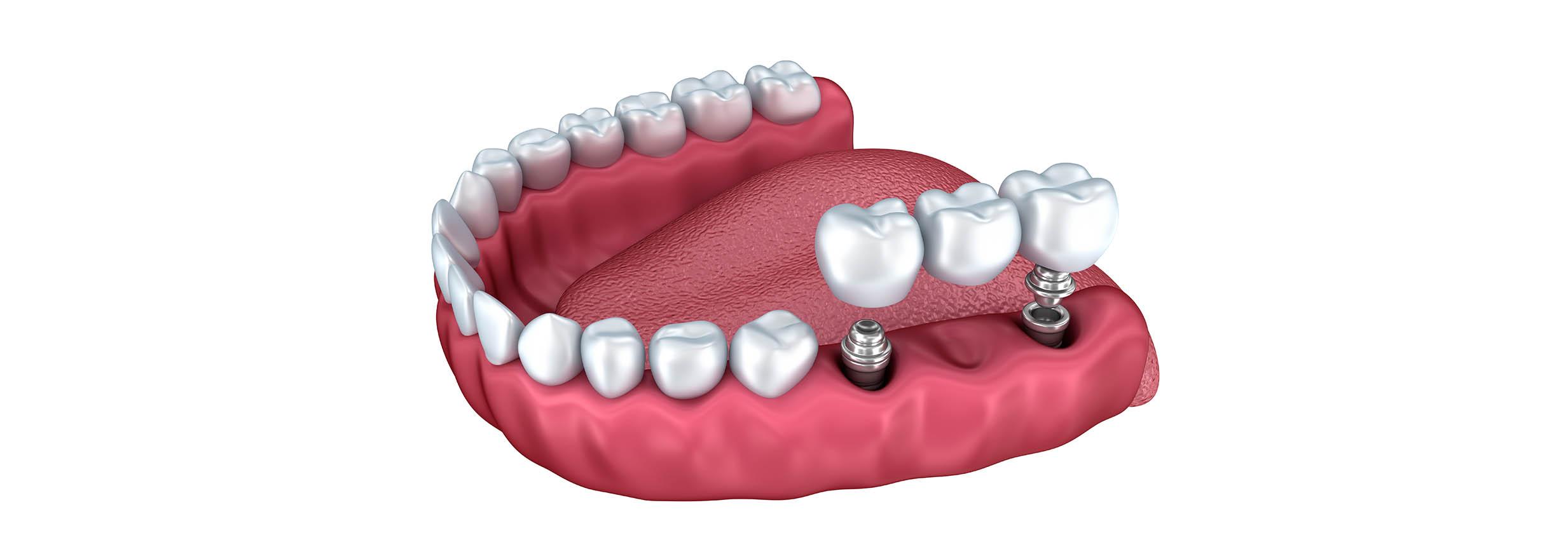 Implantologia dentale | Verona | Studio dentistico a Verona | Studio dentistico Muraro