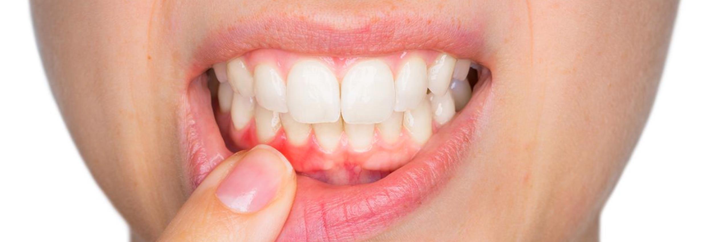 Parodontologia a Verona | Studio dentistico a Verona | Studio dentistico Muraro I